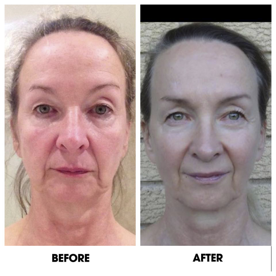 Facial exercise before and after photos — photo 10