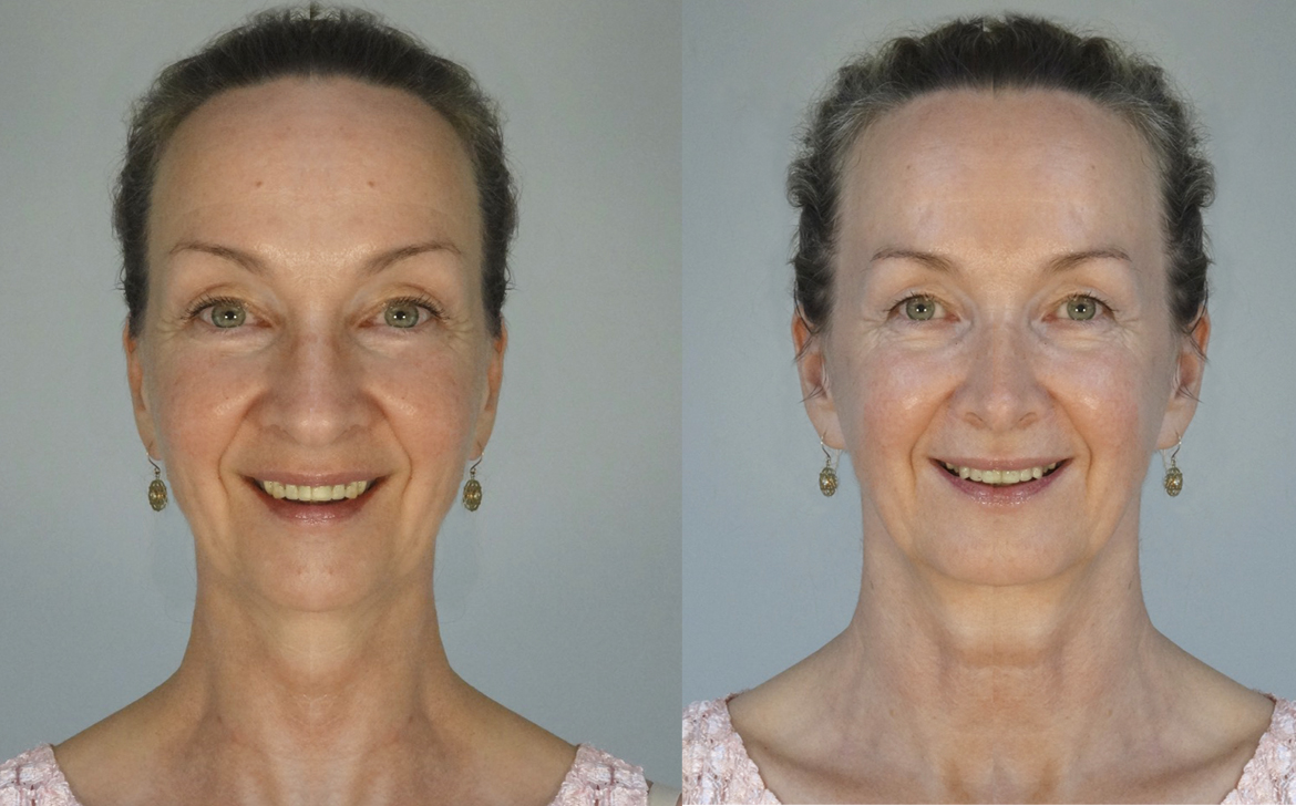 Why is My Face Not Symmetrical? Face Yoga Australia